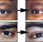 eyeball_tattooing-2